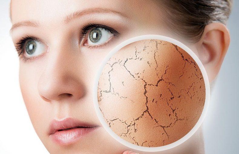 انواع بیماری های پوستی و عارضه های آن